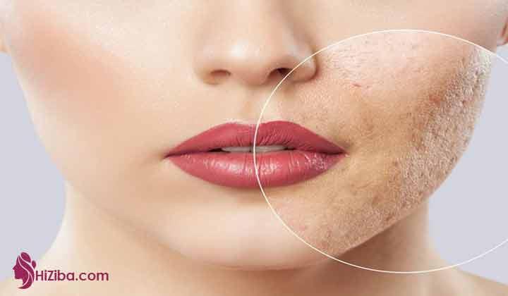 جوش های روی بینی نشانه چیست و علت جوش روی بینی چیست ؟