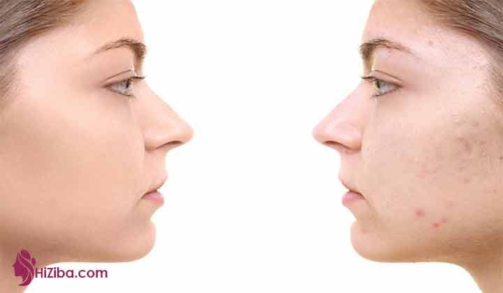 پیشگیری از به وجود آمدن جوش بزرگ روی بینی