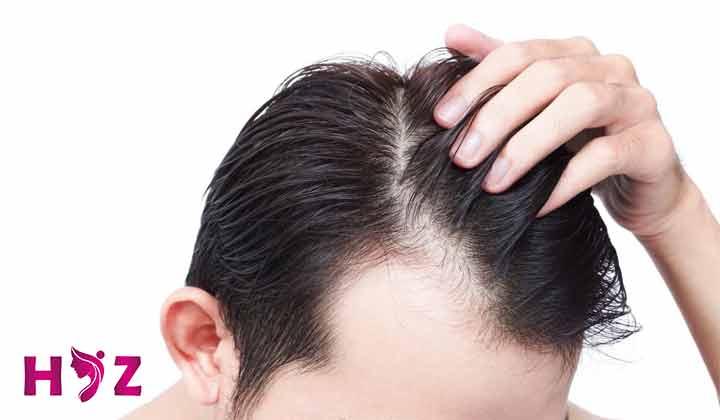 چربی سر بعد از کاشت مو