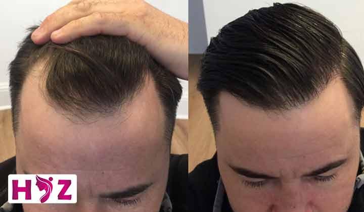 دلایل مختلفی که باعث چرب شدن سر بعد از کاشت مو میشن؟