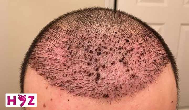 علت خارش شدید بعد از کاشت مو چیست؟