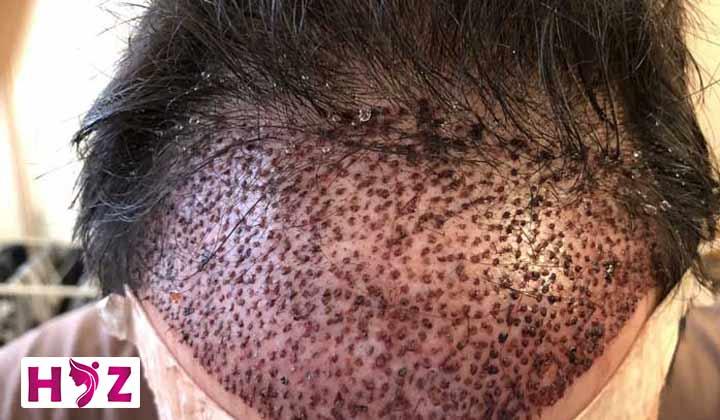 دلایل ایجاد دلمه های بعد از کاشت مو