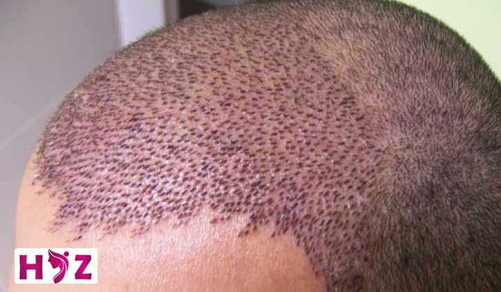 درد جای بخیه کاشت مو رو چطور کاهش بدم؟