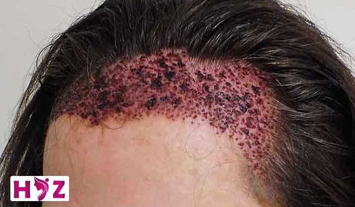 دلمه های بعد از کاشت مو را چطور درمان کنیم؟