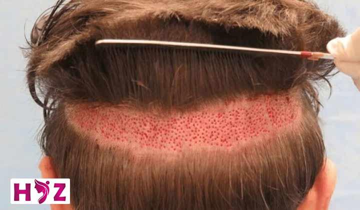 درد پشت سر بعد از کاشت مو طبیعیه یا نه؟