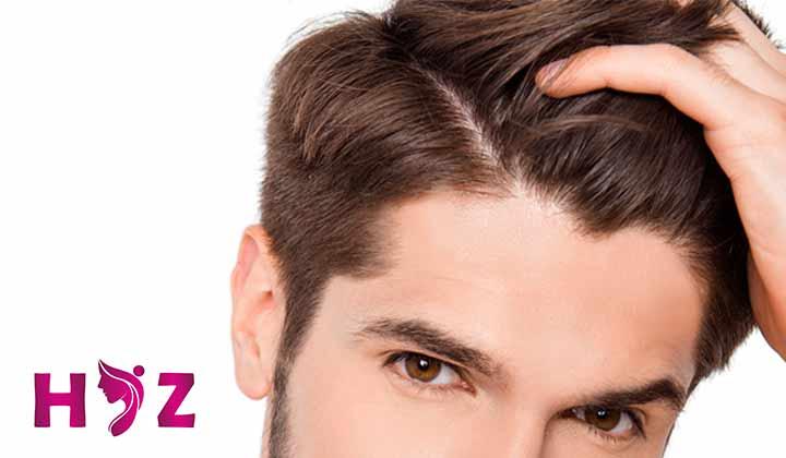 دستکاری موهای کاشته شده