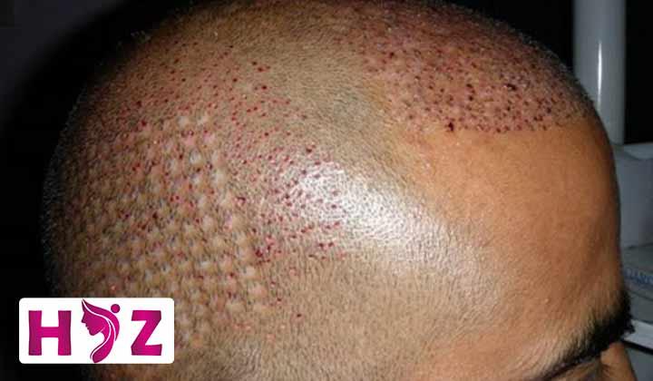 دلمه های بعد از کاشت مو