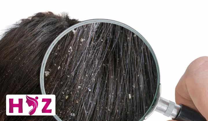 شوره سر بعد از کاشت مو طبیعی است یا خیر؟