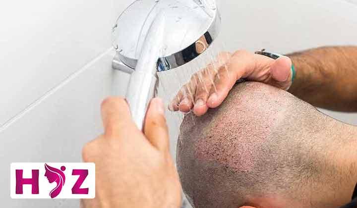 خشک کردن مو بعد از کاشت مو باید به چه صورت انجام شود؟