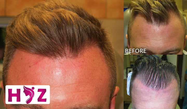 کاشت مو با دستگاه ARTAS