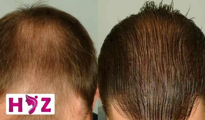 قدم دوم: آیا شما کاندید مناسبی برای انجام کاشت مو هستید؟