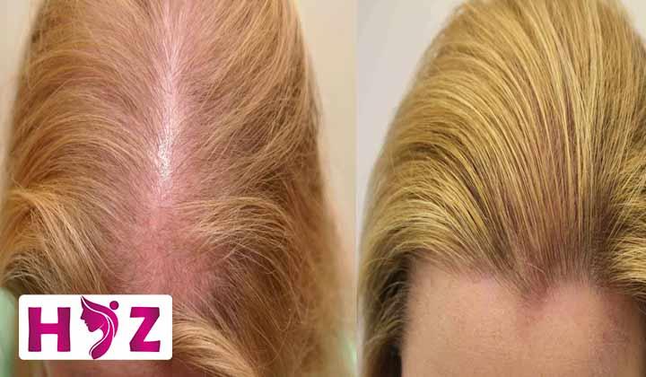 روند درمان کاشت مو به روش ARTAS