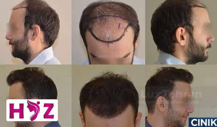 مراحل کاشت مو چیست؟
