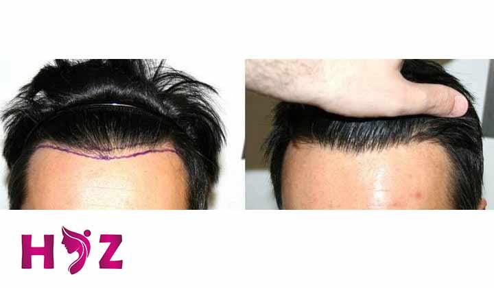 در واقع بانک مو برای کاشت مو باید ویژگی های زیر را داشته باشه :