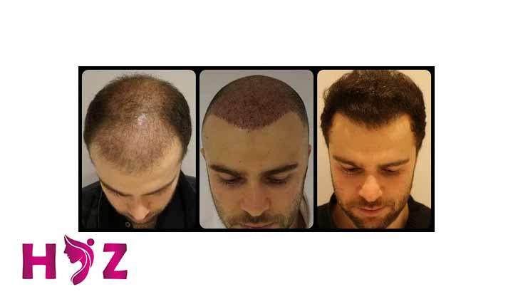 گام پنجم از مراحل کاشت مو : کاشت مو در کلینیک