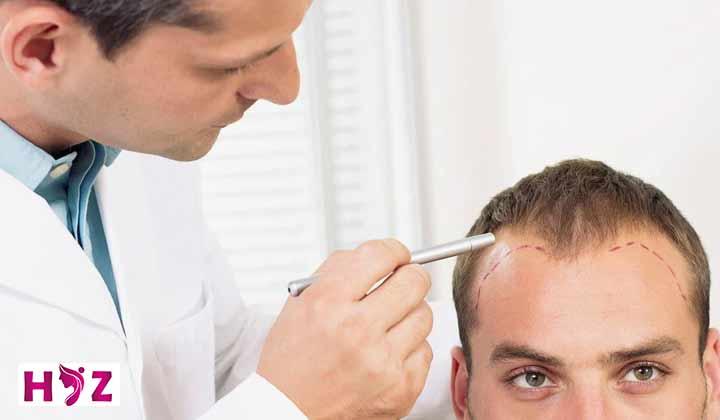 تکنسین کاشت مو چیست؟
