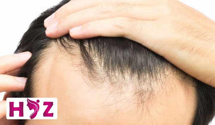 کاشت مو در محل ساختگی