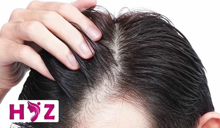 درمان سوختگی پوست سر