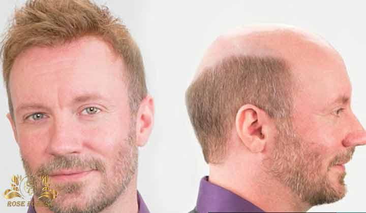 کاشت مو با بانک ضعیف