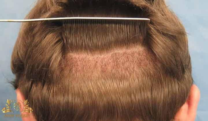 همه چیز درباره کاشت مو با بانک موی ضعیف