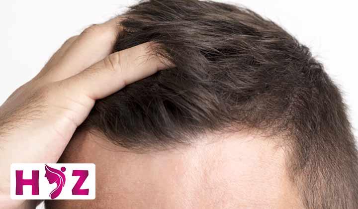 رشد مو در تابستان بیشتر است یا زمستان