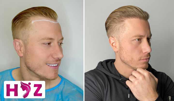 کاشت مو در سن 23 سالگی