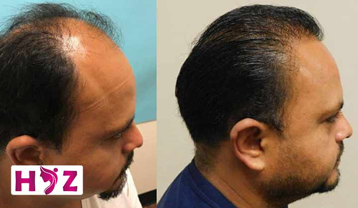 سن مناسب کاشت مو چند سال است ؟