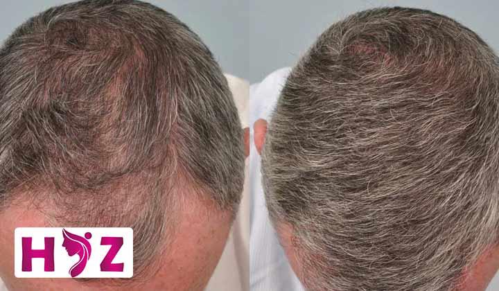 پروتز مو به روش پانچ چگونه انجام می شود؟