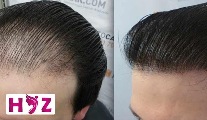 مرکز کاشت مو به روش Bht