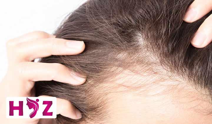 روش کاشت موی FCI چیست؟