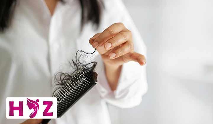 درمان ریزش مو در دوران بارداری