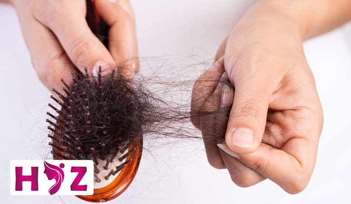درمان خانگی ریزش مو در بارداری