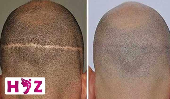 گرافت مو چیست؟
