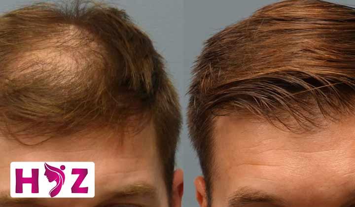 ویژگی های پروتز مو به روش پانچ