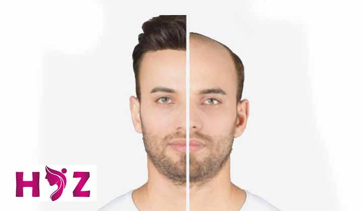 معایب کاشت مو به روش new graft