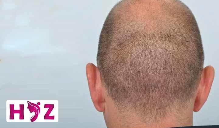 ترمیم بانک مو چگونه انجام می شود؟