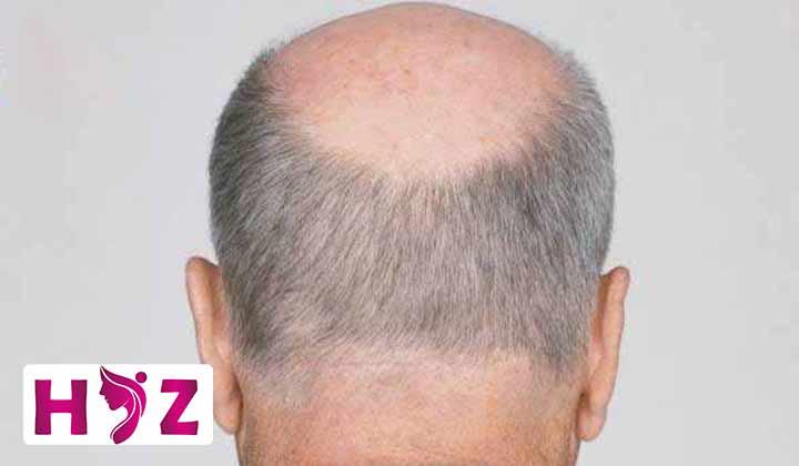 کاشت مو با بانک موی دیگران ممکن است؟