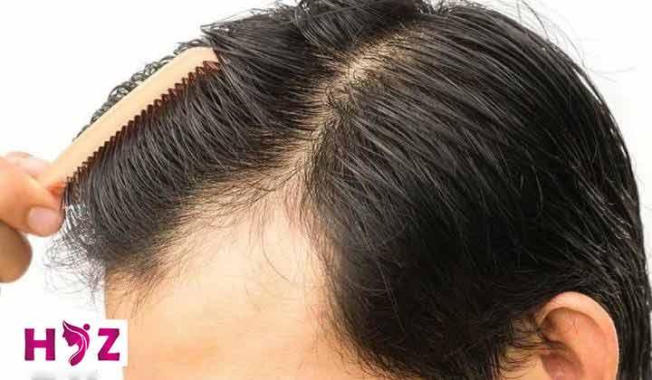 کاشت مو در فصل تابستان
