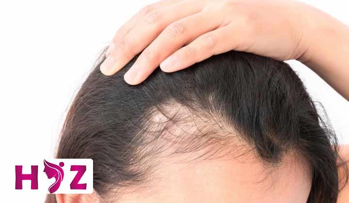 مزایا و معایب ترمیم مو به روش پانچ