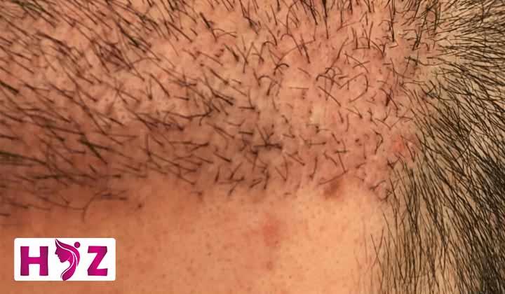 راه های درمان جوش بعد از کاشت مو