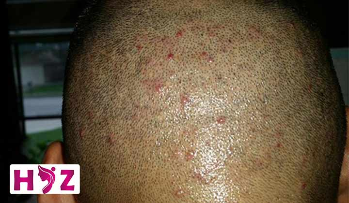 درمان جوش بعد از کاشت مو