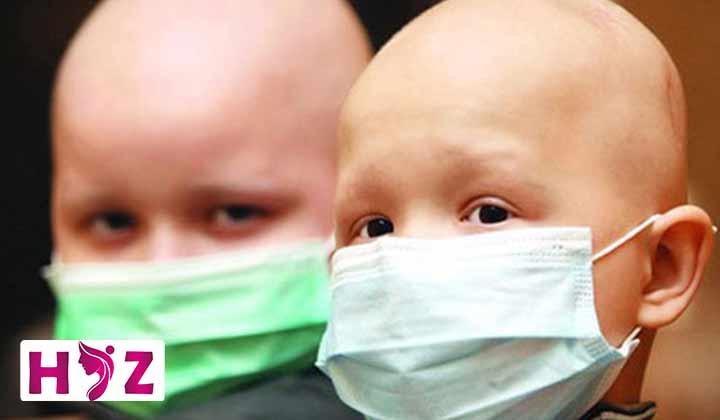ریزش مو در کودکان بعد از شیمی درمانی