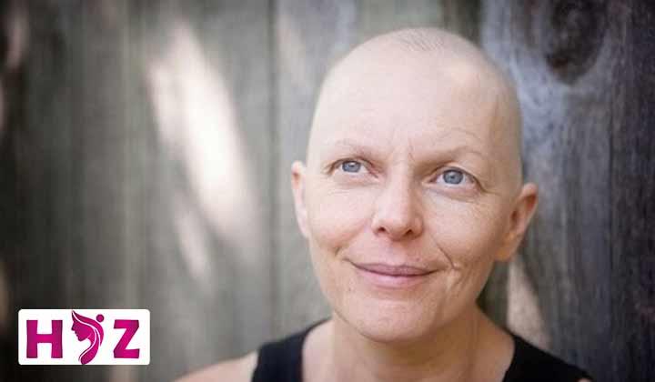 درمان ریزش مو به دلیل شیمی درمانی