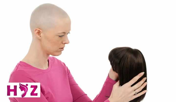 ریزش مو در پرتو درمانی