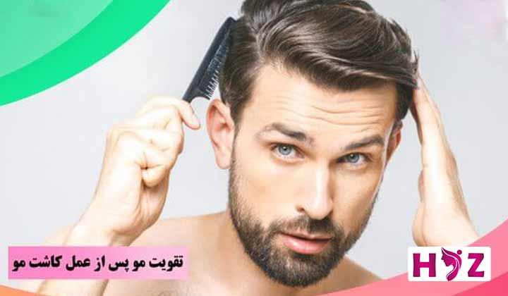 تقویت مو ها بعد از کاشت مو