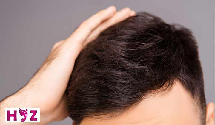 مواد مورد نیاز بدن برای تقویت موها بعد از کاشت مو