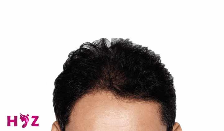 اهمیت تراکم موی کاشته شده