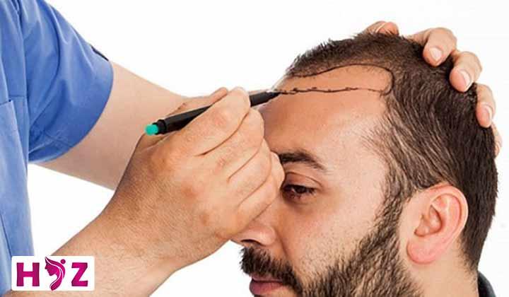 بهترین روش کاشت مو چیست