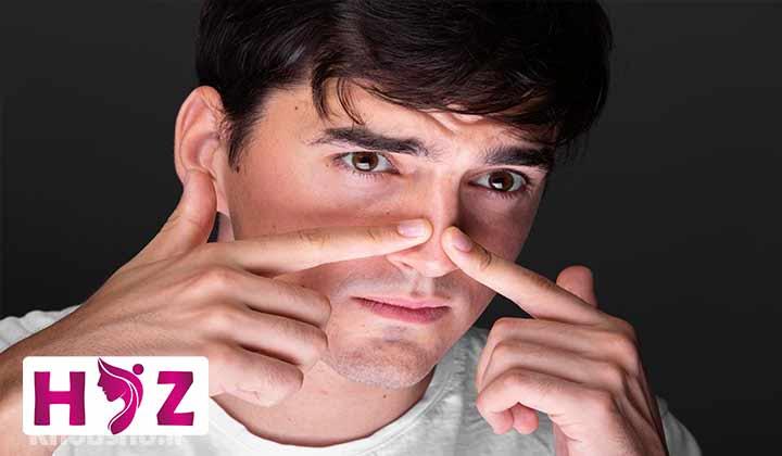روش های خانگی درمان جوش چرکی روی بینی